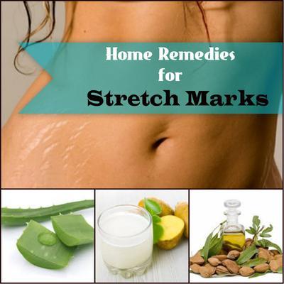 4 Bahan Alami untuk Mengatasi Stretch Mark
