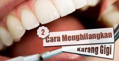 5 Cara Mudah Mencegah Karang Gigi