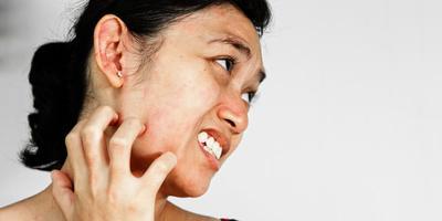 6 Cara Alami Mengatasi Biang Keringat Membandel