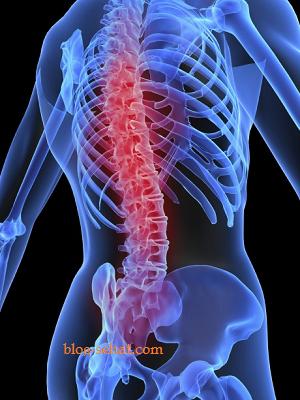 Menjaga Kesehatan Tulang