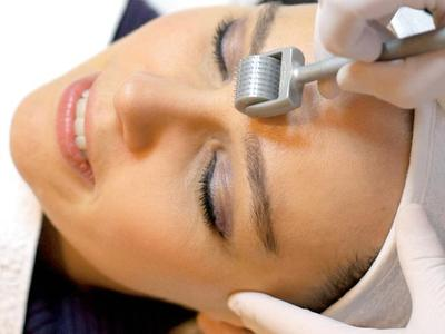 Apa Fungsi Treatment Dermaroller?