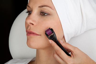 9 Manfaat Dermaroller untuk Kecantikan
