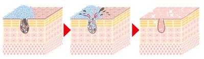 Kandungan Enzim Dalam Enzyme Cleanser