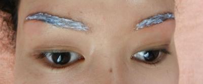 Perawatan Kulit Sebelum dan Sesudah Laser Hair Removal