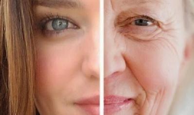 Pengaruh Sinar Ultraviolet Pada Kulit Sebabkan Kanker Kulit NM dan MM