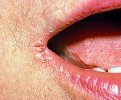 Apakah Mulut Kering Merupakan Penyebab Bau Mulut?