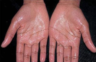 Hyperhidrosis, Kondisi yang Bisa Menimbulkan Gejala Penyakit Akibat Bau Badan
