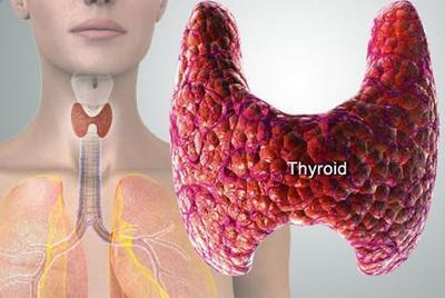 5. Gangguan Tiroid