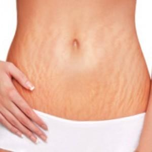 Tips Menyamarkan Stretch Marks