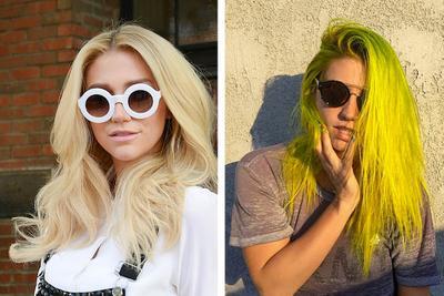 5. Kesha