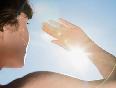 Bahan-Bahan Alami untuk Mengatasi Masalah Kulit Terbakar Matahari