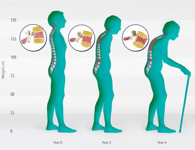 2. Tulang Menjadi Rapuh