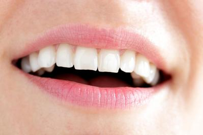 4 Hal yang Harus Diperhatikan Sebelum Memutihkan Gigi