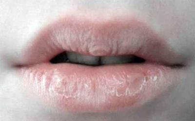 Bibir Kering Saat Puasa? Simak Tips Berikut untuk Mengatasinya