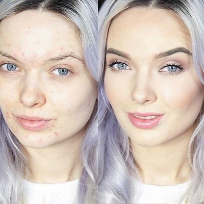 5 Langkah Tepat Aplikasikan Makeup untuk Wajah Berjerawat