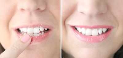 4. Hindari Kondisi Bibir Pecah-Pecah