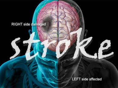 Tentang Penyakit Stroke