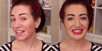 Ternyata Begini Langkah-Langkah yang Benar untuk Menutupi Jerawat dengan Makeup