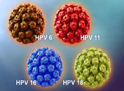 Virus Human Papillomavirus: Penyebab Utama Kanker Serviks