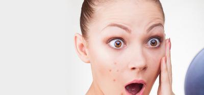5 Alasan Kenapa Masalah Pada Kulit Wajah Kamu Tak Kunjung Hilang