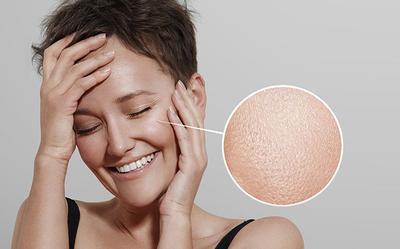 Inilah 5 Penyebab Kulit Wajah Berminyak dan Cara Mengatasinya