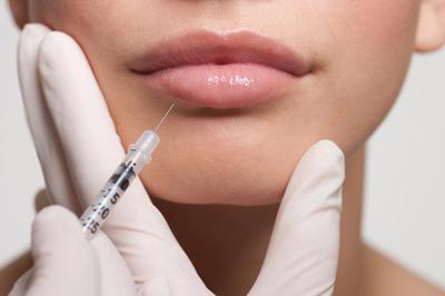 Inilah 5 Fakta yang Mungkin Belum Kamu Ketahui Tentang Lip Filler