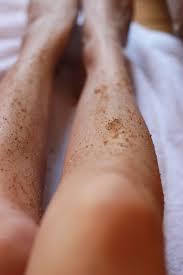 Tips Alami untuk Menghilangkan Bintik-Bintik Hitam di Kaki (Strawberry Legs)