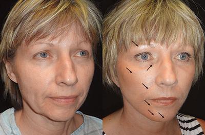 Ternyata Lemak Bisa Ditransfer! Ini Dia 4 Beauty Surgery yang Populer di Kalangan Wanita!