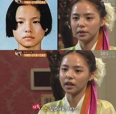 6 Artis Wanita Korea Ini Akui Menjalani Operasi Plastik Lho!