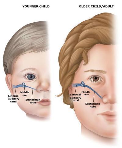 Inilah Penyebab Infeksi Telinga pada Bayi yang Wajib Kamu Pahami