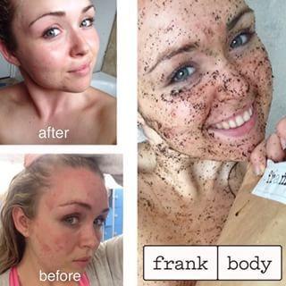 Frank Body Scrub Hadir Sebagai Penolong Mengatasi Masalah Kulit