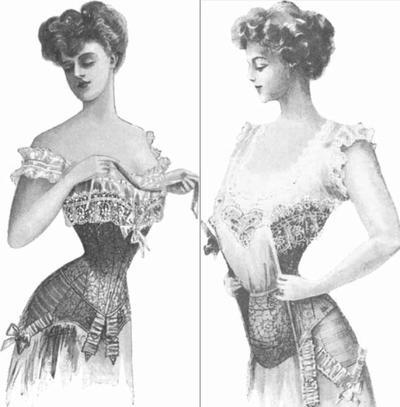 Ngeri! Ini 3 Tren Fashion Paling Ekstrim Sepanjang Sejarah, Berani Coba?