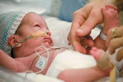 4. Bayi Lahir Prematur