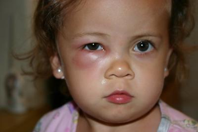 Tidak Disangka, Ternyata Ini 5 Bahaya Mengintai dari Penggunaan Make Up Bagi Anak!