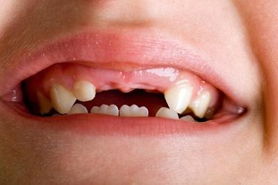Masalah Gigi di Kemudian Hari