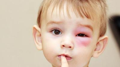 Penyebab Umum Alergi