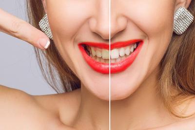 Tak Pede Punya Gigi Kuning? Cara Alami Berikut Jadikan Gigi Berkilau dan Sehat Lho!