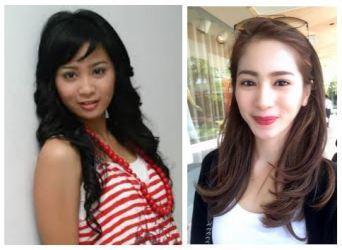 Terlihat Berbeda, Ternyata 5 Artis Indonesia Ini Melakukan Operasi Plastik Lho!