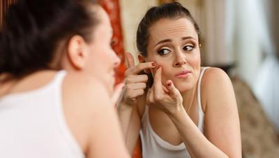 Apakah Jerawat Kamu Timbul Disebabkan Oleh Hormon? Cek Ciri-cirinya di Sini!