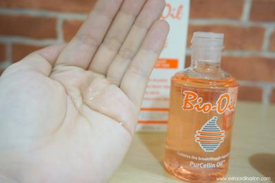Inilah Cara Menggunakan Bio Oil untuk Menghilangkan Bekas Jerawat!