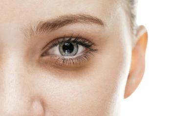 Eye Bag dan Dark Circle, Masalah Kecantikan yang Paling Ditakuti