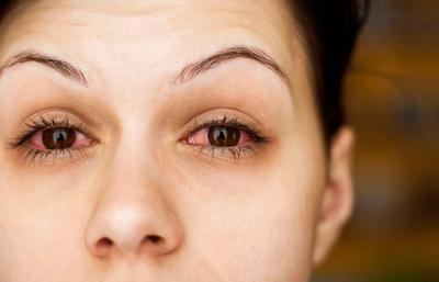 Menggunakan Kosmetik yang Kadaluarsa? Inilah 4 Akibat yang Akan Kamu Alami, Ladies!