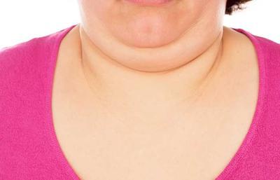 5 Cara yang Bisa Menghilangkan Double Chin dengan Mudah! Nomor 4 Tak Disangka-sangka