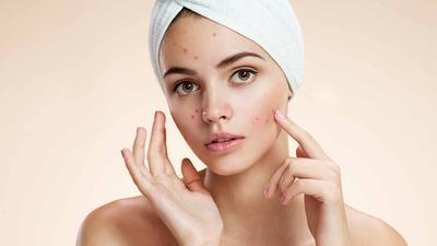 Untuk Kulit Berjerawat, Apa Sih Jenis Makeup yang Harus Dihindari