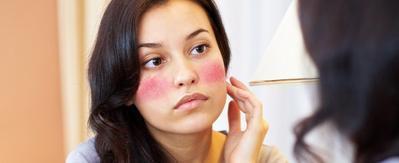Alami 7 Tanda Ini? Waspada Kamu Alergi Terhadap Produk Kecantikan!