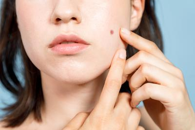 Selain Hyaluronic Acid, 7 Zat Ini Sering Juga Dijumpai dalam Produk Skincare, Amankah?