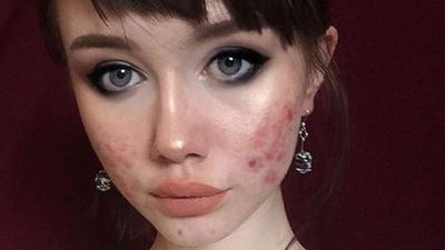 #FORUM Kenapa Sih Kalau Berenti dari Krim Dokter, Kulit Wajah Jadi Makin Memburuk??
