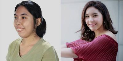 Ternyata Ini Alasan Wanita Korea Hobi Melakukan Operasi Plastik Berulang Kali!