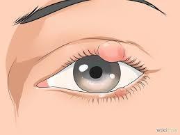 Gimana sih cara atasi mata bintitan? share yuk !
