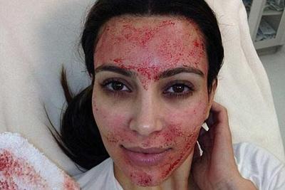 Asal-Usul Trend Vampire Facial